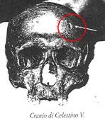 craniocelestinov